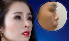 Cơ hội phẫu thuật thẩm mỹ với bác sĩ Hàn Quốc tại Việt Nam