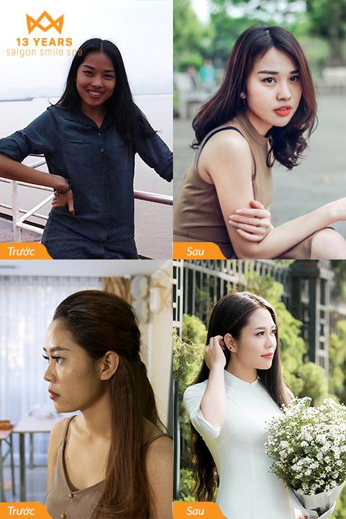 Mua 1 được 3 dịch vụ giảm béo, trẻ hóa da tại spa top 1 châu Á - Thái Bình Dương - 1