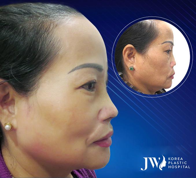 Chị Thu Loan trước và sau khinâng mũi S Line Plus.
