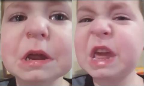 """Bé trai khóc """"méo mặt"""" vì bị kẹt miếng lego trong mũi"""