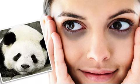 13 điều nên làm để trị quầng thâm và bọng mắt