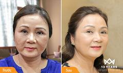 Người phụ nữ trung niên sạch nám chân sâu sau 25 năm