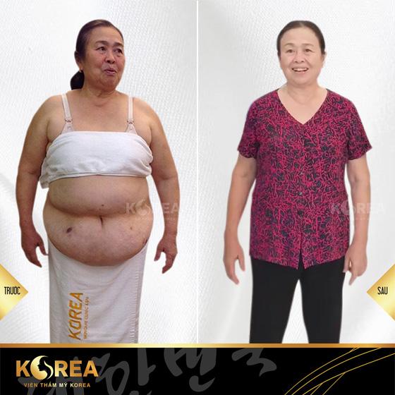 Cô Hồnggiảm 12kg mỡ xấu sau khi giảm béo tại viện thẩm mỹ Korea. Các triệu chứng bệnh khớp và mỡ máu cũng giảm rõ rệt, cô Hồng cho biết.