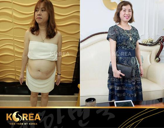 Chị Hải - khách hàng giảm béo tại viện thẩm mỹ Korea đã giảm 38 cm vòng bụng lấy lại vóc dáng thon gọn.