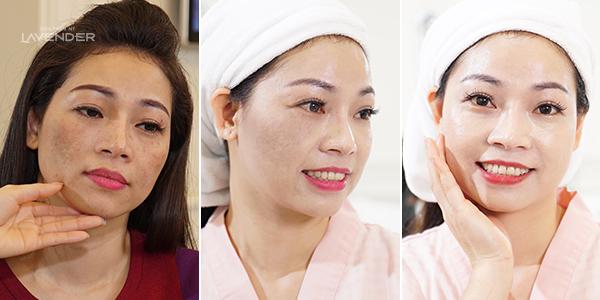 Chị Thuận rạng rỡ khoe da mặt sau trị nám thành công.