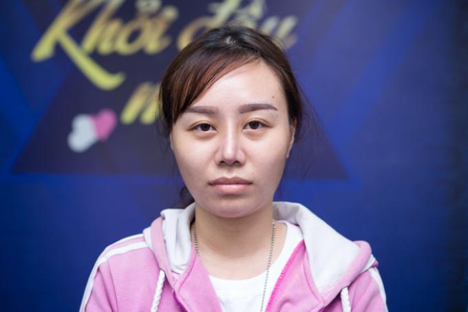 Chiếc mũi của chị Kim Nguyên lệch vẹo và sưng tấy rất đau nhức.