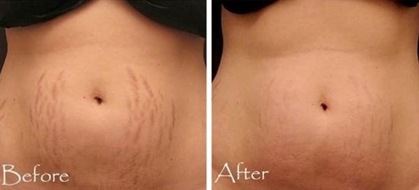 Để trị rạn da, hãy dùng khoai tây thái lát, đắp lên da, rồi dùng băng gạc quấn quanh bụng. Để như vậy trong một giờ rồi rửa sạch. Thực hiện liệu pháp liên tục cho đến khi thấy hiệu quả.