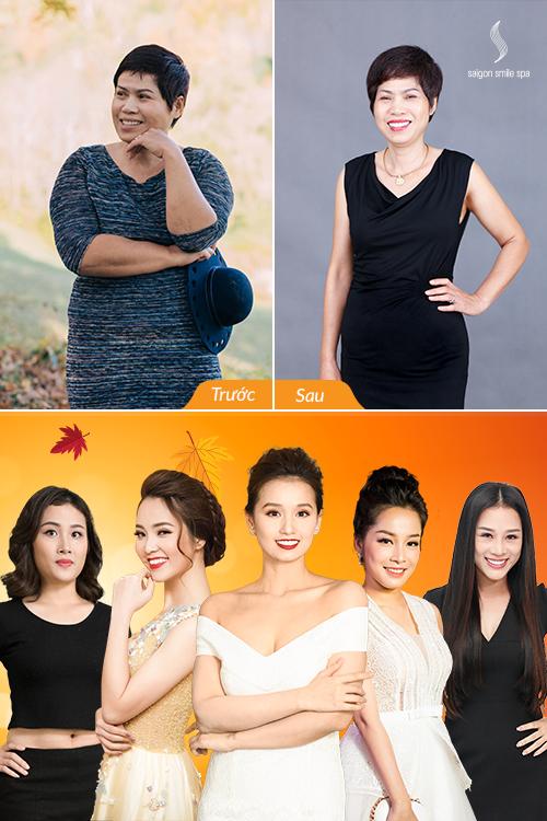 Người phụ nữ U50 trẻ đẹp hơn hồi 35 nhờ giảm 13kg - 2