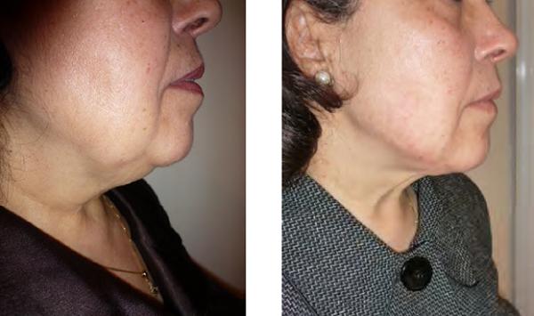 Hình ảnh khách hàng trước và sau ba ngày hút mỡ nọng cằm với công nghệ Lipomatic.