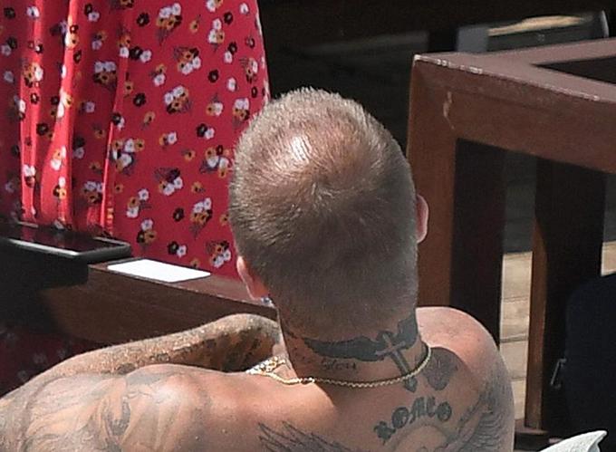 Anh thậm chí có triệu chứng hói đầu. Nhiều tờ báo ở xứ sở xương mù tiết lộ Becks đã âm thầm đi cấy tóc hồi tháng 6 vừa qua.