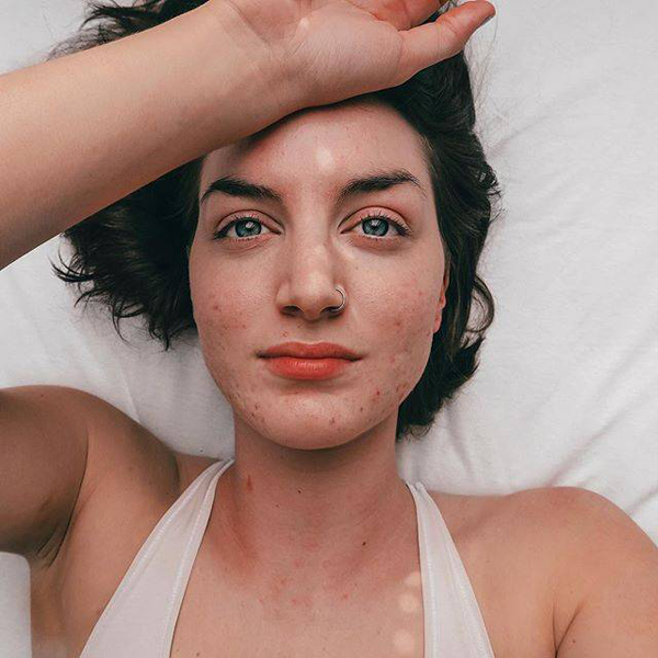 12 Beautiful Images of Real Womens Acne Scars