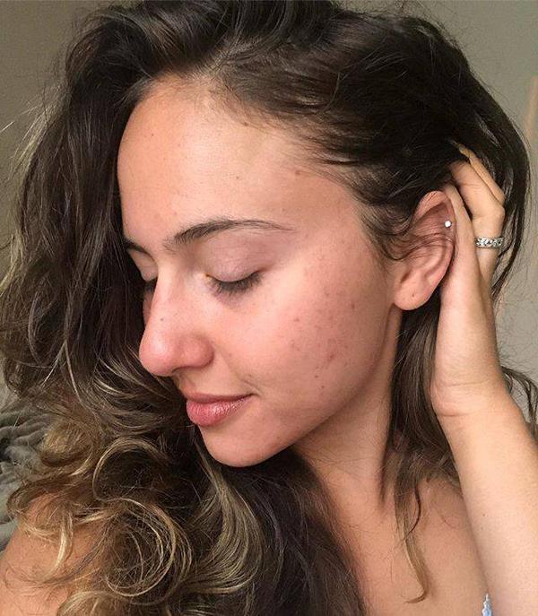 Jessica Demasi là một chuyên gia chăm sóc sức khỏe cho phụ nữ nhưng cô cũng thường xuyên phải đối mặt với vấn nạn mụn. Jessica cho biết, làn da của phụ nữ không phải lúc nào cũng mịn màng dù bạn có chăm sóc kỹ lưỡng đến đâu. Đôi khi bạn cũng sẽ bị mụn hay nhiều vấn đề khác nhưng không nên vì thế mà nản lòng, hãy chăm sóc da đều đặn để cải thiện tình trạng da nhanh hơn.