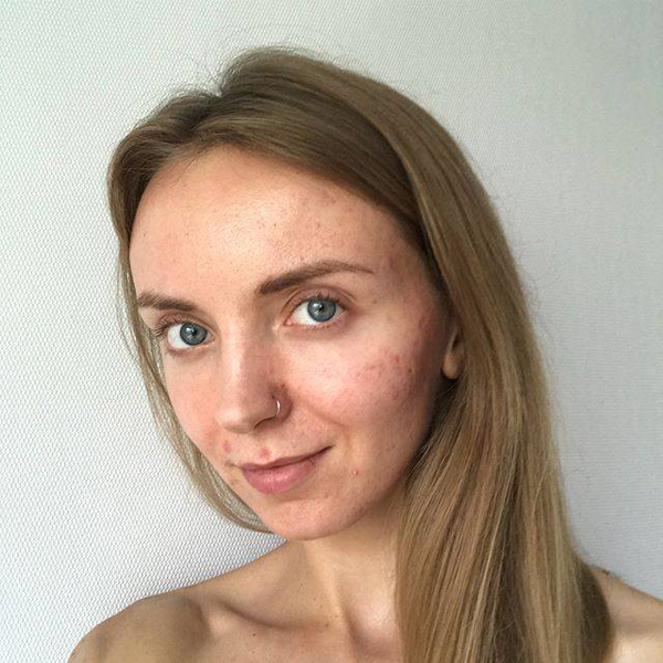12 Beautiful Images of Real Womens Acne Scars - 4