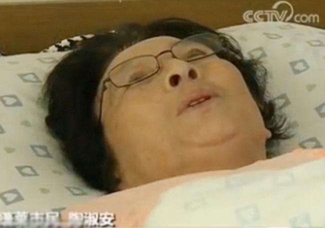 Cô Tao Shuan, người đã cố gắng cứu ba bà cháu bị ngã ở thang cuốn siêu thị Bồng Sơn, hiện nằm viện chờ phục hồi sau khi phải phẫu thuật chân. Ảnh: China Central TV.