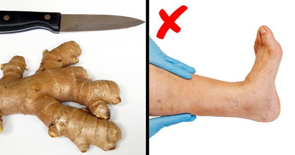 Gừng Gừng được coi là một trong những loại thực phẩm lợi tiểu hiệu quả nhất. Nó hỗ trợ tiêu hóa và giúp loại bỏ tất cả độc tố có hại khỏi cơ thể.
