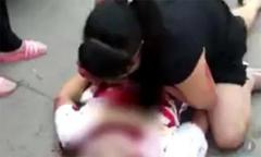Con trai bị đâm khi bảo vệ mẹ khỏi kẻ giật túi