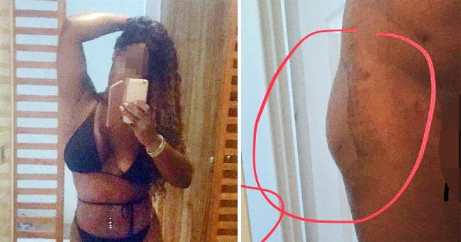 Michelle Thomas chi gần 100 triệu đồng cho ca phẫu thuật độn mông nhưng không thành công.
