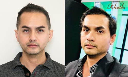 Cách trị hói đầu, phục hồi tóc dày của sao Việt và doanh nhân