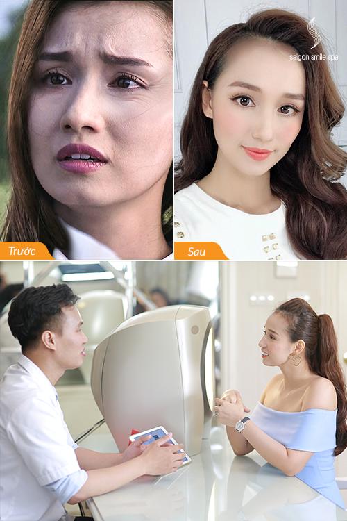 Lã Thanh Huyền được mô phỏng tỷ lệ mặt thật bằng công thức của Saigon Smile Spa để so sánh với tỷ lệ mặt đạt tiêu chuẩn sau trị liệu.
