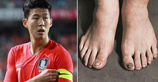 Đôi bàn chân tàn tạ của Son Heung-min. Ảnh: NN.