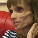 Cuộc chiến chống bệnh biếng ăn của cô gái 26 tuổi chỉ nặng 17kg