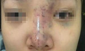 Chủ spa biến mất sau ca nâng mũi khiến cô gái 20 tuổi mù mắt