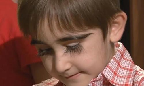 Cậu bé 11 tuổi có cặp lông mi dài gần 5 cm