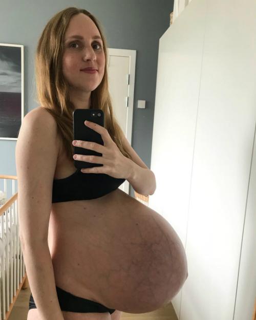 Phần bụng của Maria nhô về phía trước và xuất hiện vô số vết rạn.