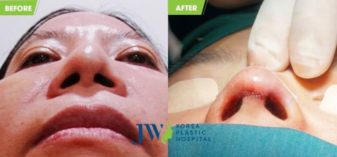 Hình ảnh khách hàng trước và sau khi chỉnh sửa mũi S line.