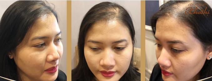 Giải pháp giúp phái đẹp khắc phục tình trạng rụng tóc, hói đầu