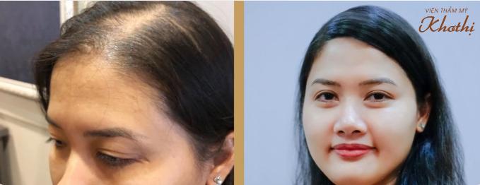 Giải pháp giúp phái đẹp khắc phục tình trạng rụng tóc, hói đầu - 3