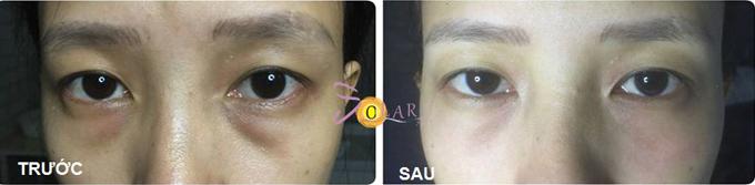 Công nghệ CPT giúp giải quyết thâm quầng lâu năm và làm giảm bọng mỡ mắt.