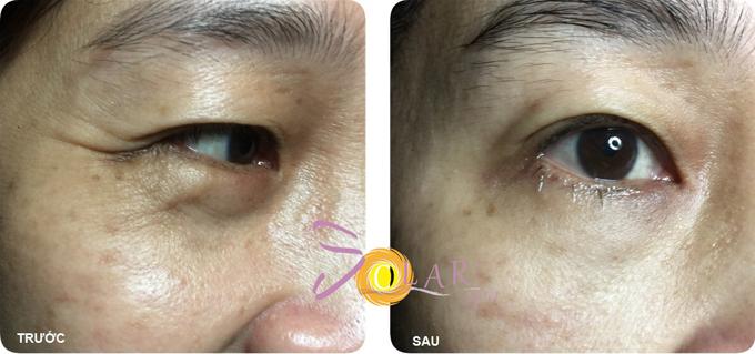 Ultherapy là liệu phápxóa bọng mỡ mắt không xâm lấn, đồng thời cải thiện nếp nhăn ở khu vực này.