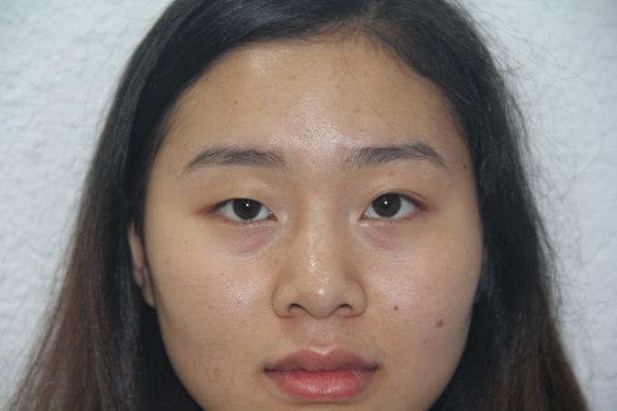 Hình ảnh trước mổ của chị Liên Hương mắt phải nhỏ hơn mắt trái trông không tự nhiên.