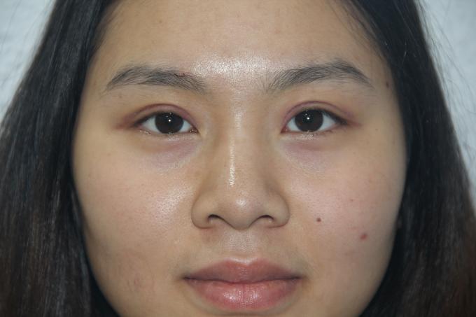 Hình ảnh 1 tuần sau phẫu thuật mắt to của chị Liên Hương với hai mắt đều đặn, cân đối, hai mí rõ trông rất tự nhiên.