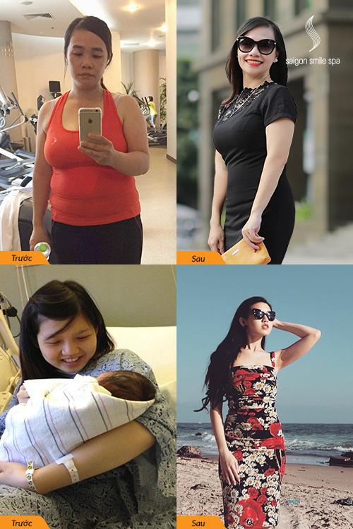 Giảm 3cm bụng không phẫu thuật cho mẹ mới sinh sau 90 phút - 2