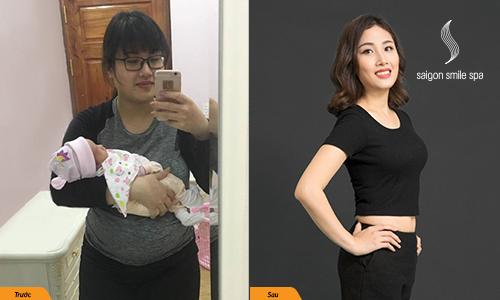 90 phút giảm 3cm bụng không cần phẫu thuật cho mẹ sau sinh