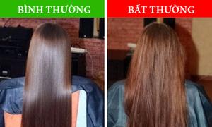 8 vấn đề sức khỏe tiết lộ qua tình trạng tóc của bạn