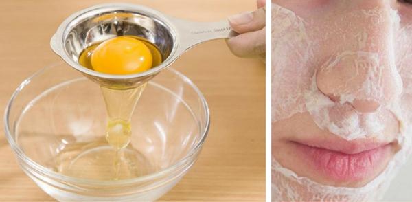 Mụn đầu đen ở mũi được giải quyết một cách đơn giản bằng lòng trắng trứng. Bạn chỉ cần tách lòng trắng trứng, phủ một lớp mặt nạ giấy lên mũi, quét lòng trắng trứng lên trên, chờ đến khi khô thì quét thêm hai lớp nữa, chờ khô hẳn rồi lột ngược từ dưới lên trên để lấy đi mụn đầu đen.