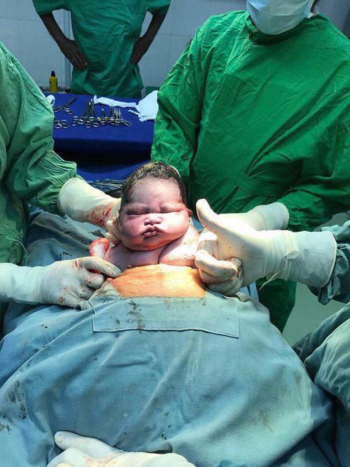 Biểu cảm của em bé vừa chào đời gây bão mạng