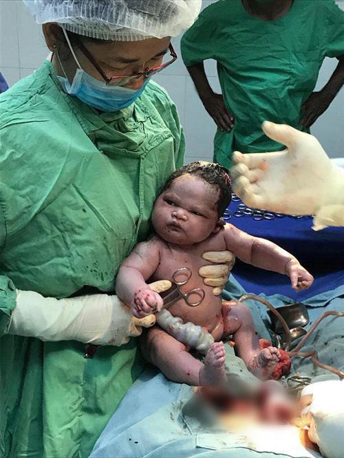 Biểu cảm của em bé vừa chào đời gây bão mạng - 1