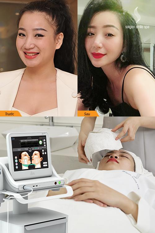 Kỳ Anh Trang được mô phỏng tỷ lệ mặt thật bằng công thức của Saigon Smile Spa để so sánh với tỷ lệ mặt đạt tiêu chuẩn sau trị liệu.