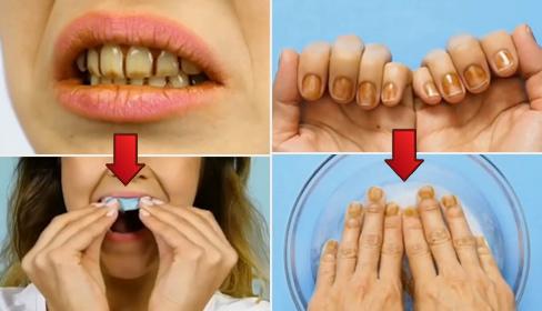 Mẹo nhỏ đánh bay vết ố vàng trên răng và móng tay