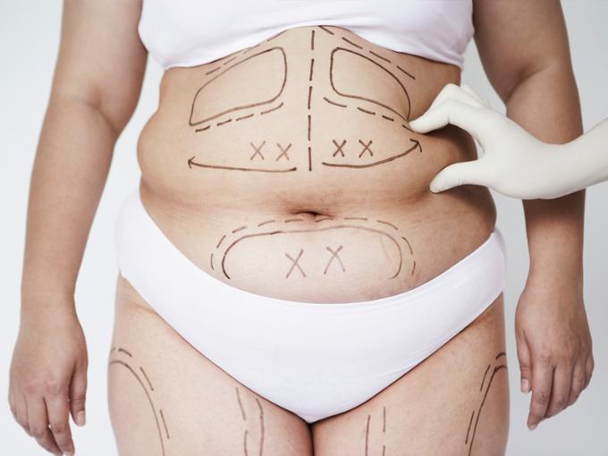 Sau 7 ngày, vòng eo của bạn sẽ giảm hẳn và hạn chế khả năng tái phát các tế bào mỡ.