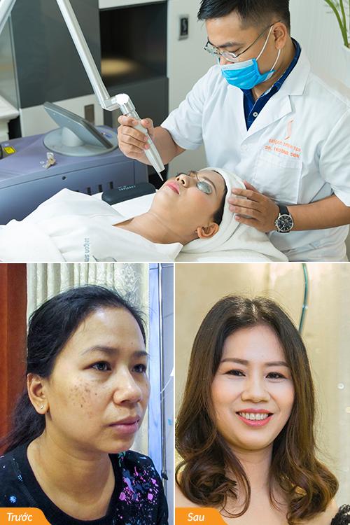 Trị nám, xóa nhăn toàn diện Revlite Plus: ứng dụng công nghệ tiên tiến của Mỹ - Laser Revlite, giúp đánh bật gốc nám, tàn nhang với các bước sóng chính xác và đi sâu đến tận chân nám. Nữ giám đốc Thanh Hoa, 40 tuổi sạch 95% nám chân sâu, da ẩm mượt, mịn màng và căng sáng, các nếp nhăn nông mờ đi trông thấy, da khỏe và săn chắc hơn khi kết thúc liệu trình.
