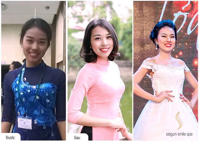 Làm trắng da chống lão hóa Yuki: với công nghệ hiện đại RET 6S giúp làn da Phương Anh (28 tuổi, HN) được làm trắng bật 3 tone từ sâu bên trong, hồng hào, rạng rỡ. Trị liệu dưỡng trắng này còn được tăng cường các bước dưỡng ẩm giúp da căng, mịn mượt. Thoát làn da bao công, cô tự tin tham gia các cuộc thi nhan sắc và đạt danh hiệu Top 10 Hoa khôi duyên dáng áo dài Việt Nam.