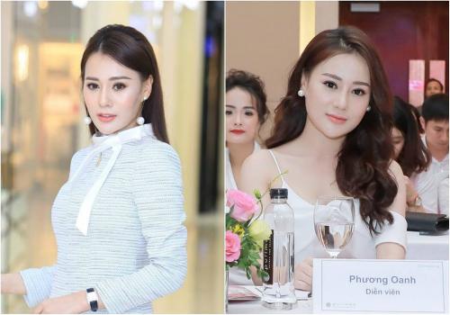 Gương mặt Phương Oanh trước và sau khi phẫu thuật phẩm mỹ.