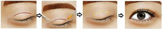 Trong vòng 30 phút, bác sĩ sẽ thực hiện đồng thời 2 kỹ thuật cắt và khâu để mở rộng mí mắt.