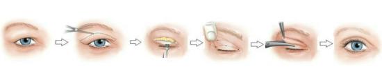Nếp mí rõ nét, cân xứng đều 2 bên, mắt tròn to rõ ràng hơn trướcsau 7-10 ngày.