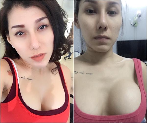 Bên trái là ảnh Ivy Trần chụp khi đi lưu diễn ở Đài Loan. Bên phải là ảnh sau khi trở về nhà với một bên ngực sưng to.